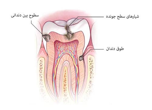 محلهای شایع پوسیدگی دندان