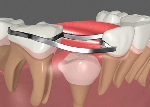 فضا نگهدارنده در دندانپزشکی