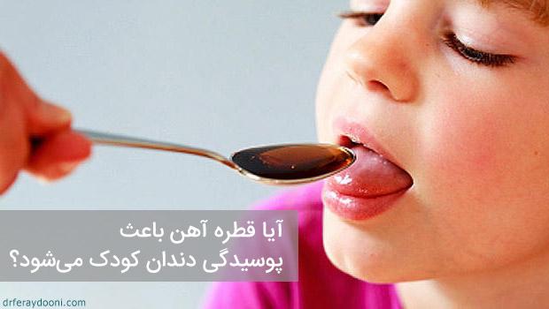 آیا قطره آهن باعث پوسیدگی دندان کودک می شود