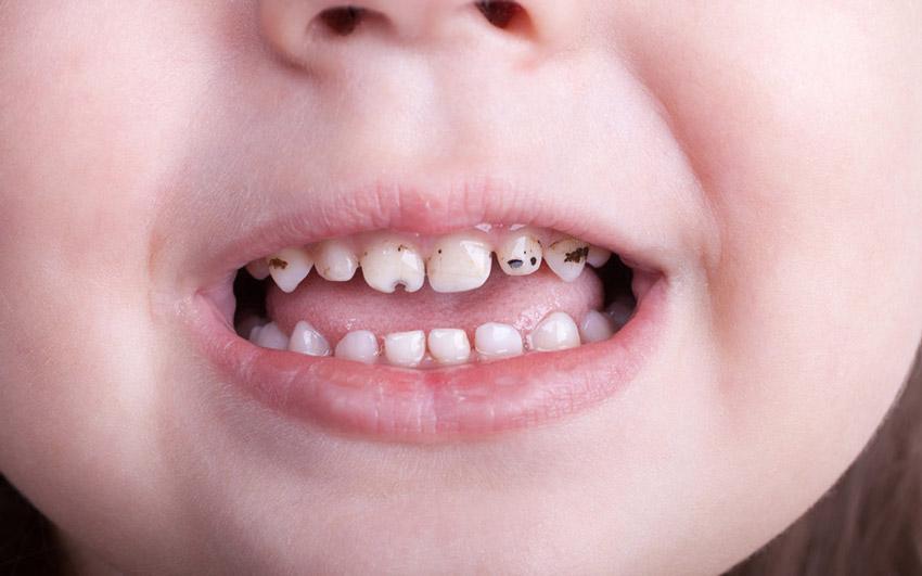 پوسیدگی دندان کودک