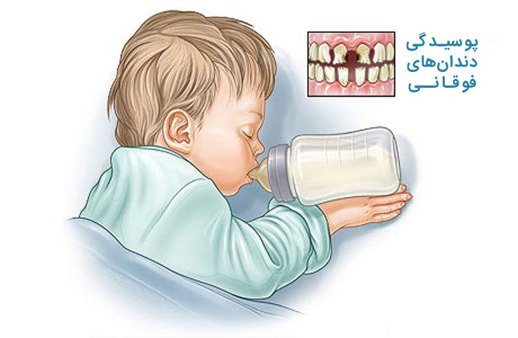 پوسیدگی دندان های فوقانی کودک