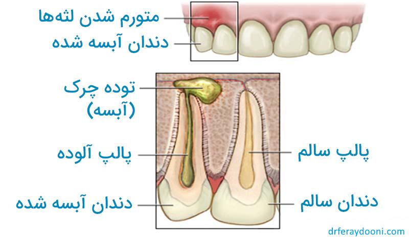 تصویر آبسه دندان و لثه
