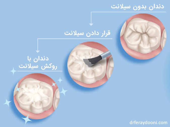 دندان پس از انجام فیشور سیلانت