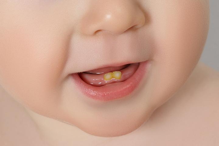 تغییر رنگ دندان در نوزادان و کودکان نوپا – علل و درمان آن