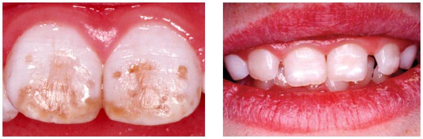 تغییر رنگ دندانها در اثر مصرف بیش از حد فلوراید (فلوروزیس)