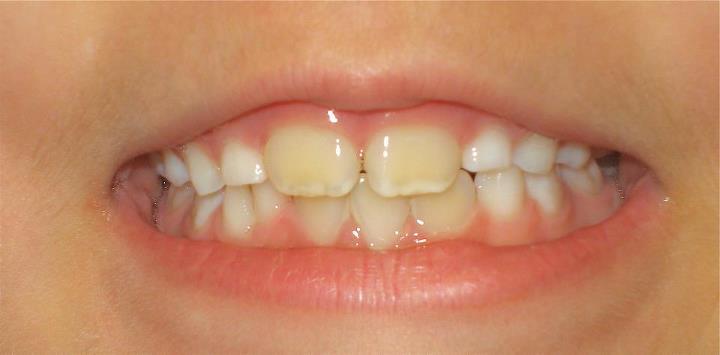 لکههای رنگ زرد یا نارنجی دندان