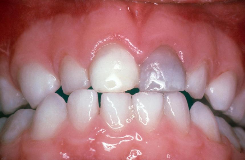 تغییر رنگ دندانها در اثر ضربه خوردن (تروما)